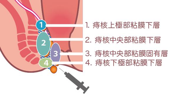 マイクリニック大久保の正常肛門のジオン(ALTA・アルタ)注