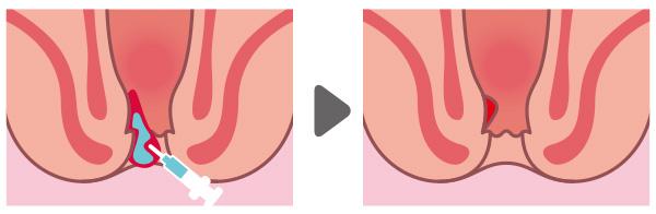 内痔核手術ALTA療法/アルタ療法のイラスト